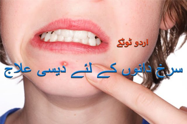 How to Remove Acne and Pimples From Face in Urdu
