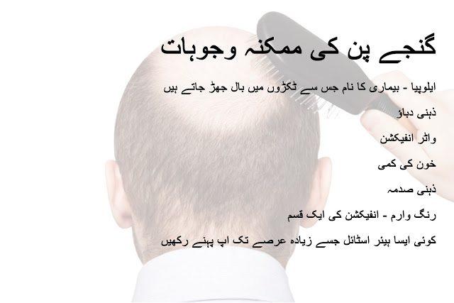 Seven Causes of Baldness in urdu and hindi - Ganja pan ki mumkina wajoohat