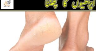 crack heels home remedy in urdu