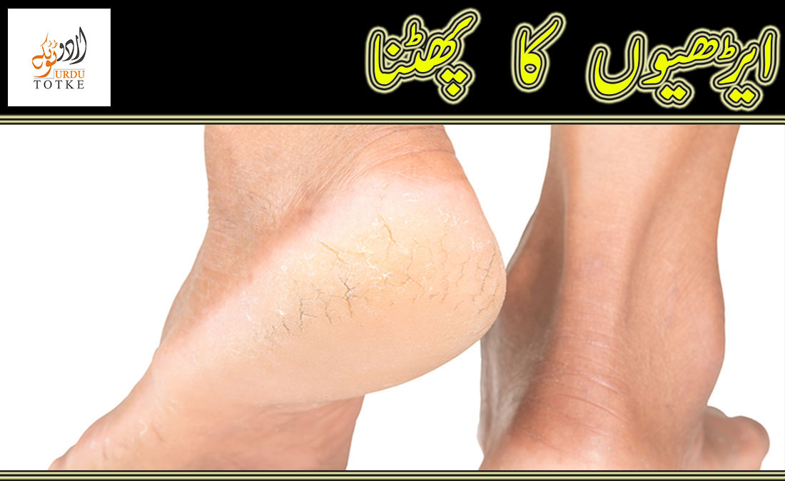 How to cure cracked heels in urdu and hindi